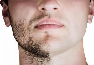 Facial-Hair-Transplant-msg