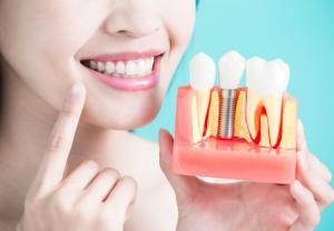 Why dental implants are the most exciting development in modern dentistry